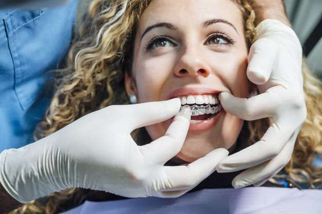 6 Invisalign Tips Every Patient Should Know